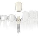 Icono Implantes dentales