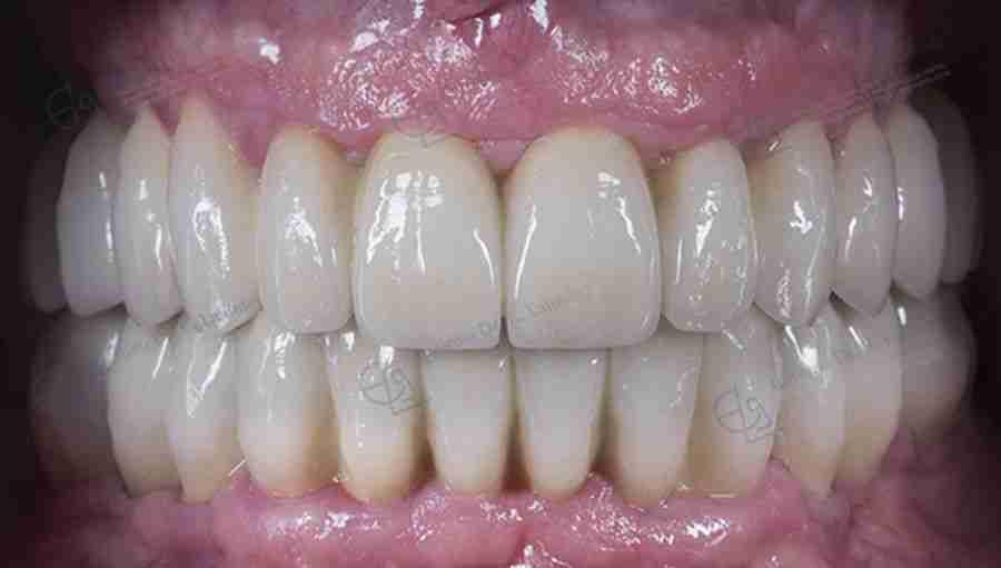 Después de prótesis dental sobre implantes