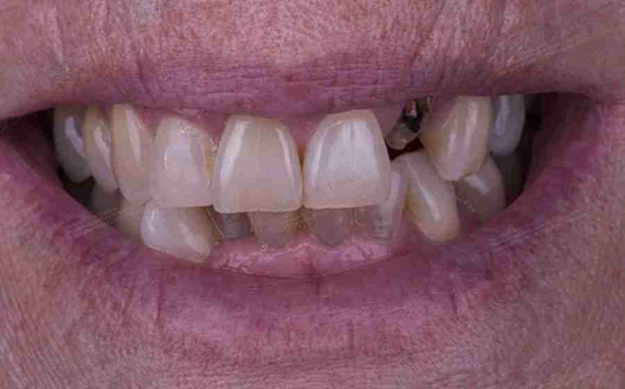 Fotos de implantes estéticos antes