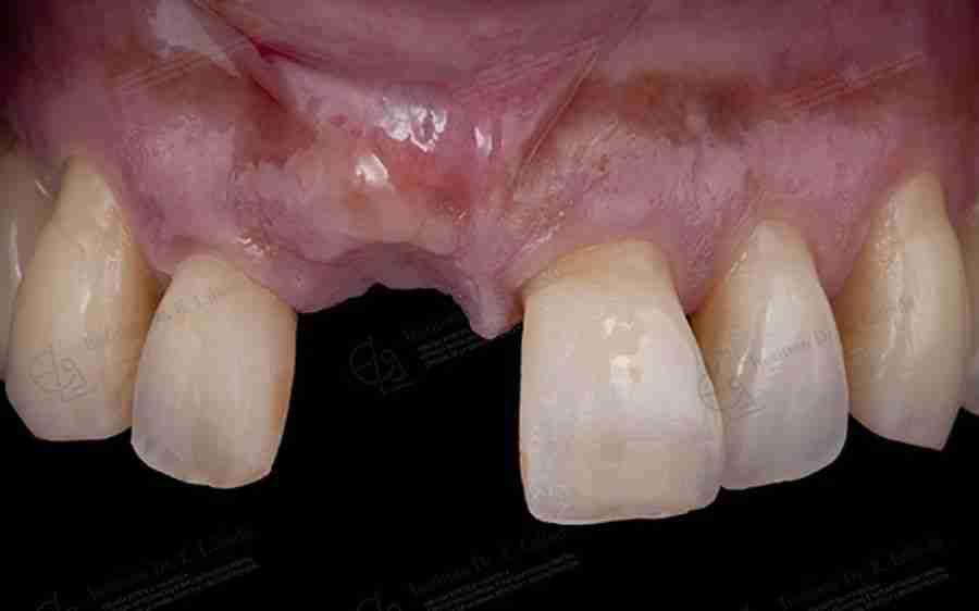 Boca antes de implante estético