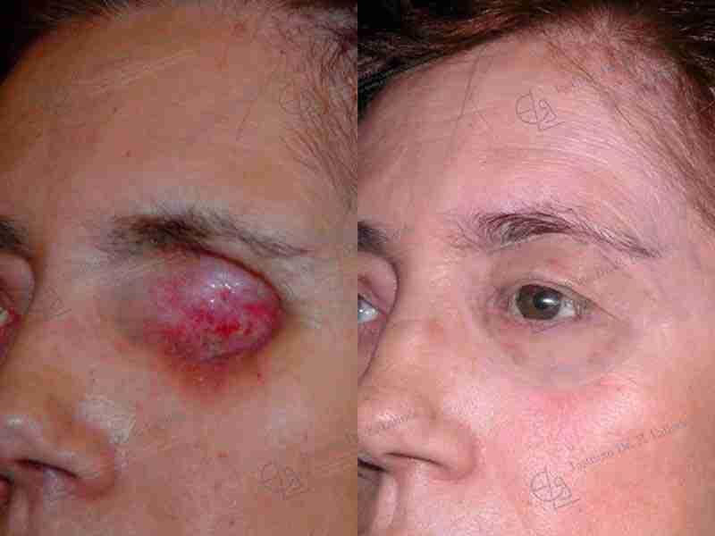 Fotos de reconstrucción de ojo con prótesis