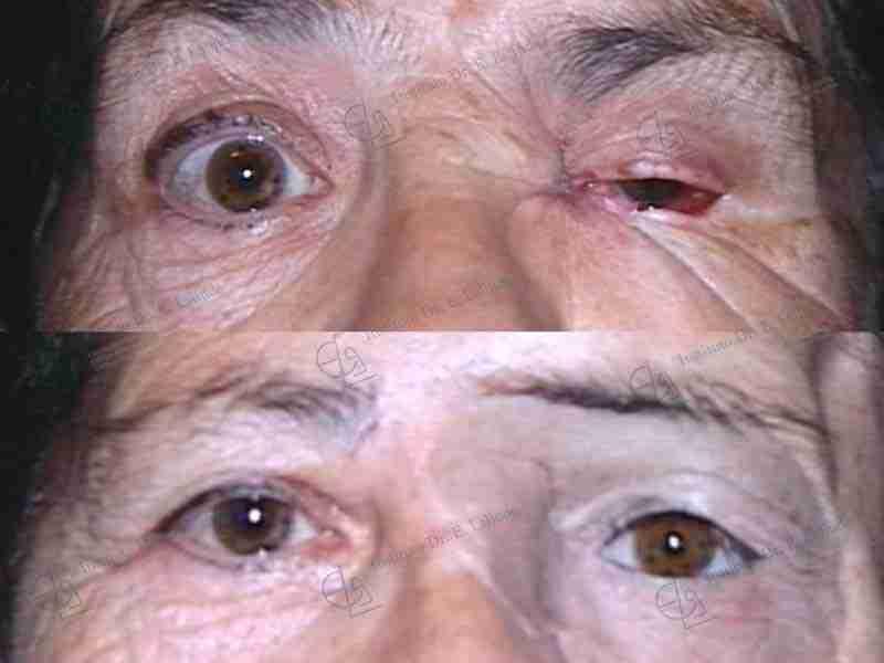 Prótesis faciales fotos