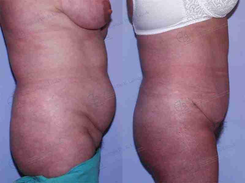 Antes y después abdominopastia