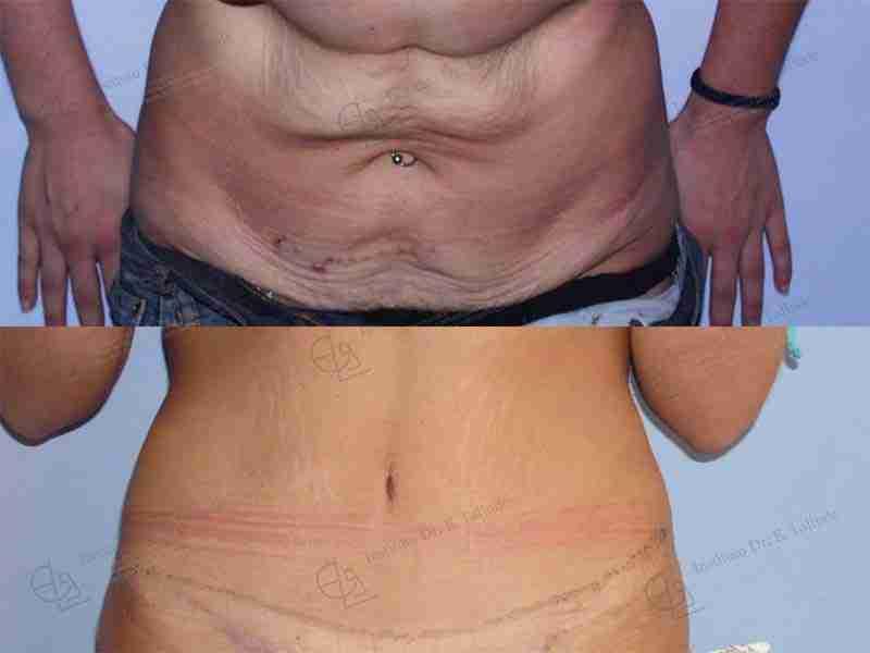 Abdominoplastia postparto fotos