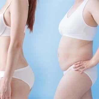 Abdominoplastia y vientre plano