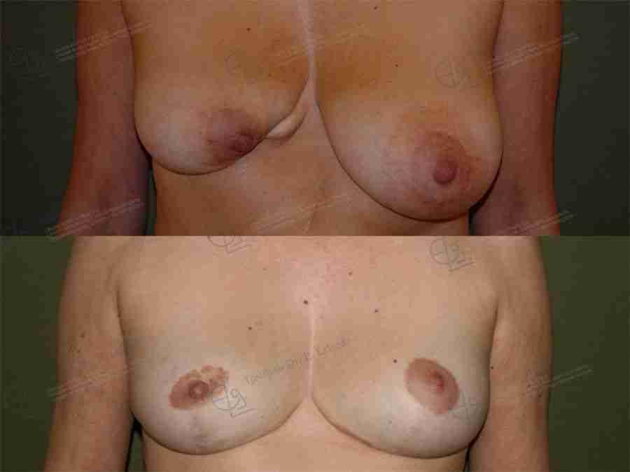 Asimetría mamaria fotos