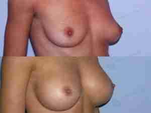 Aumento mamario antes y después