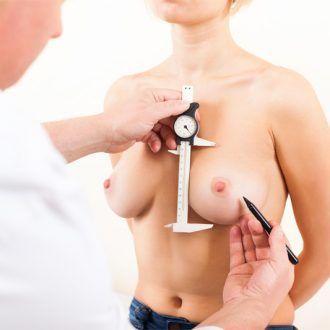 Cuándo hacer aumento mamario