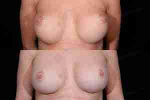 Antes y después de una reconstrucción de la mama