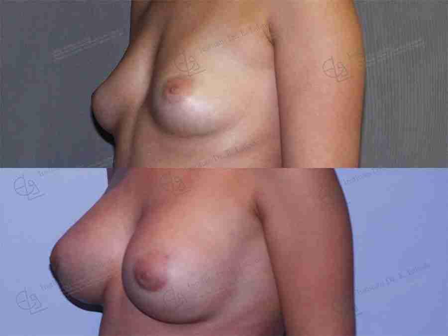 Aumento mamario fotos