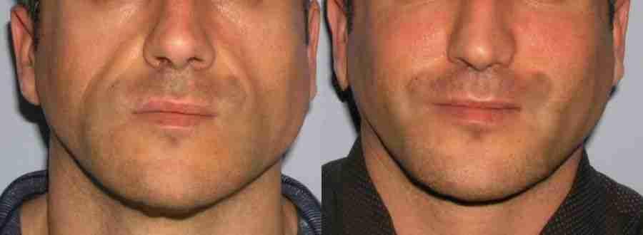 Implante de pomulos antes y despues de adelgazar