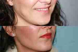 Antes y después bolas de Bichat