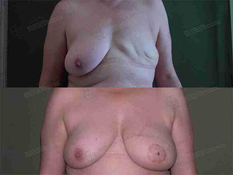 Fotos reconstrucción mama