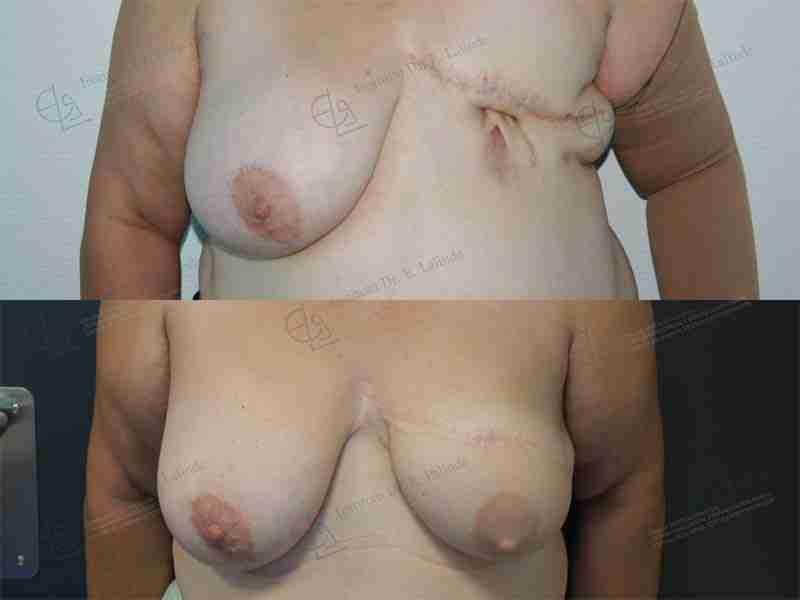 Reconstrucción mama antes y después