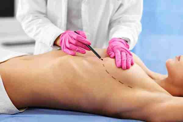 Cirugía areola pezón complicaciones