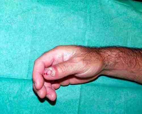 Cirugía de la mano después.