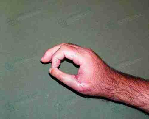 Fotos de cirugía de la mano