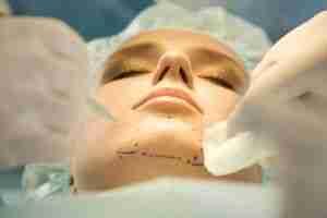 Cirugía plástica mentoplastia