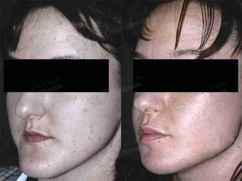 Antes y después de la cirugía ortognática.