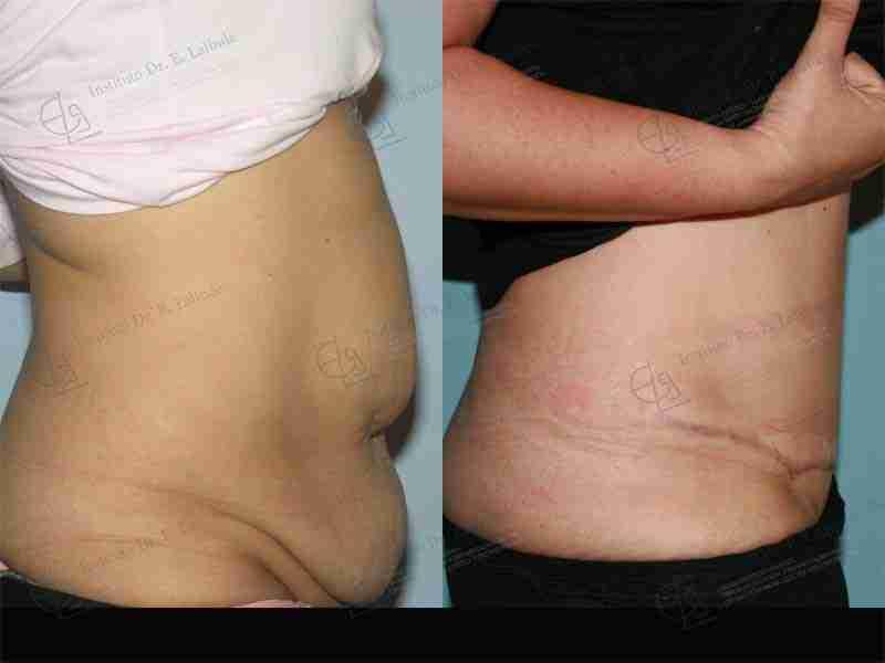 Fotos cirugía post obesidad