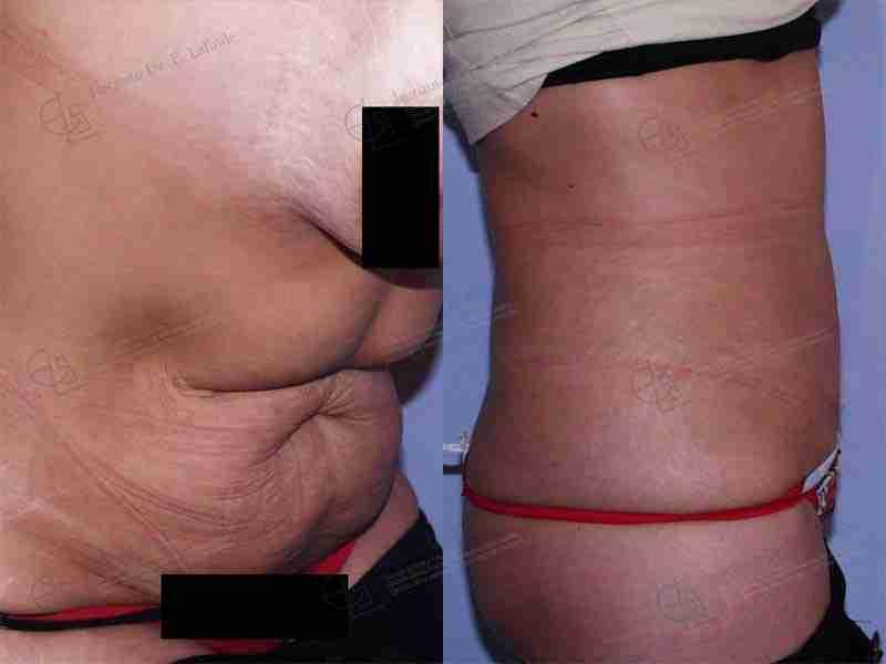 Antes y después cirugía postobesidad
