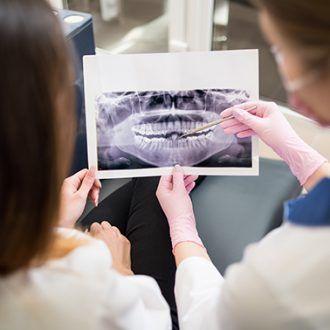 Contraindicaciones en endodoncia