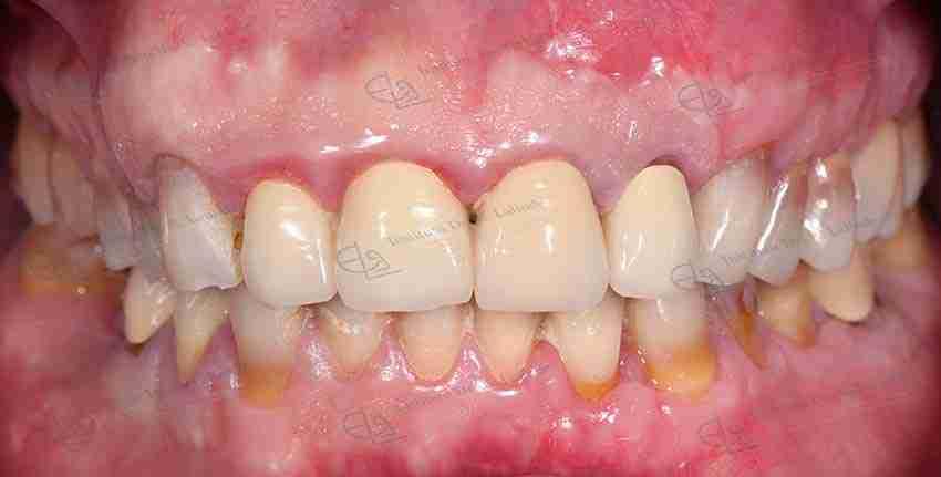 Fotos dentadura coronas