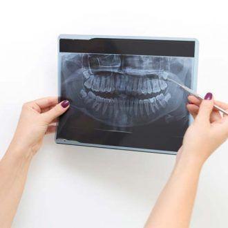 Posición de dientes en defecto maxilar