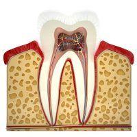 Endodoncia y diente