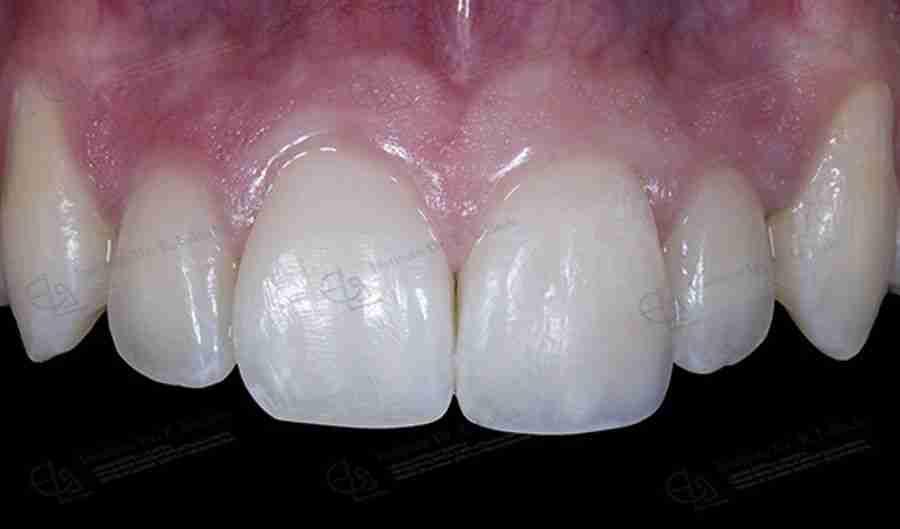 Foto de endodoncia después