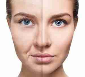 Foto del antes y después de una cirugía estética
