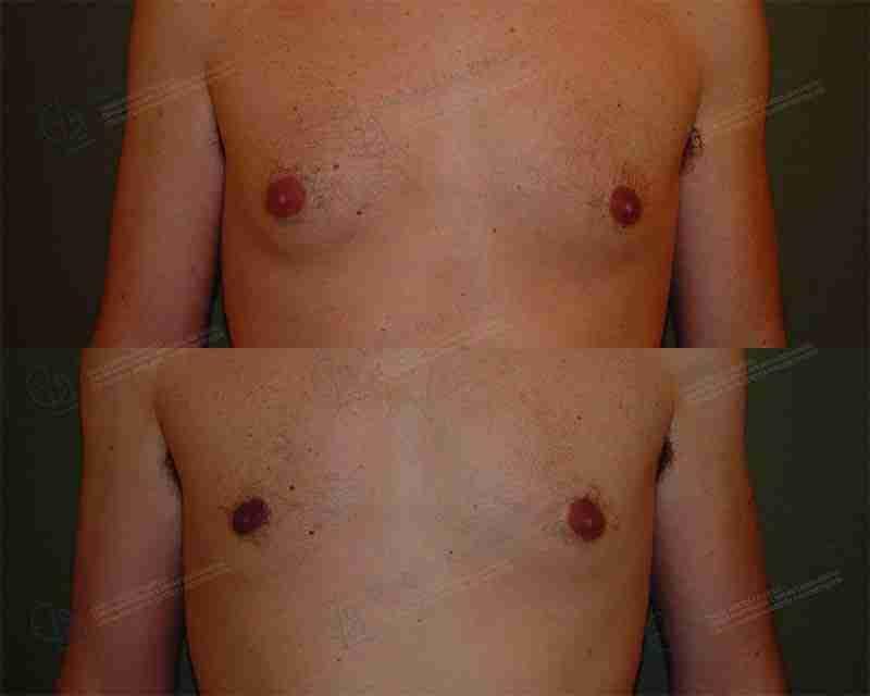 Ginecomastia antes y después