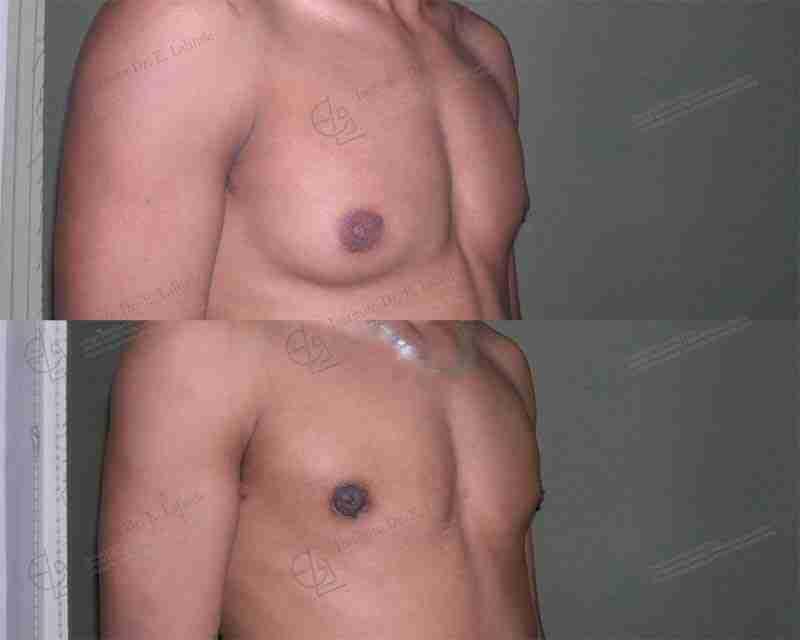 Operación ginecomastia antes y después