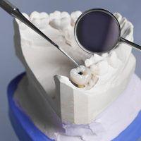 Implantes dentales y hueso