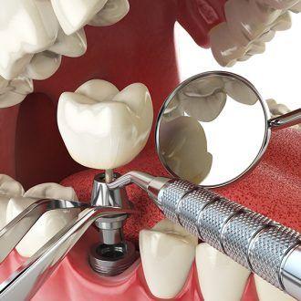 Implantes dentales y encías