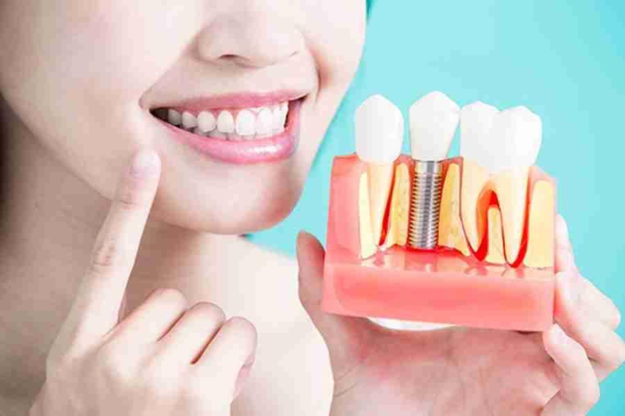 Implantes estéticos