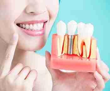 Implantes dentales estéticos
