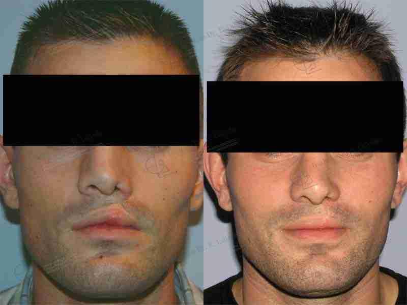 Labio leporino antes y después