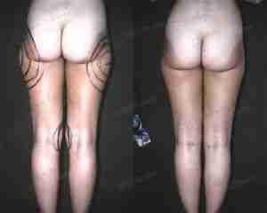 Liposucción fotos