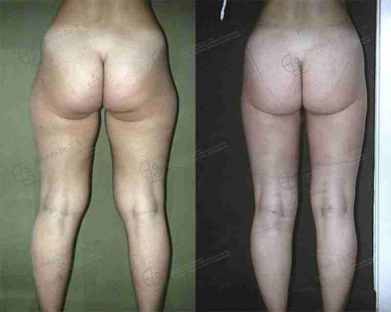 Fotos antes y después liposucción