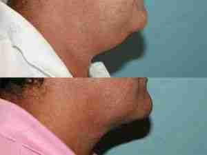Liposucción facial en hombre