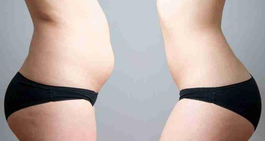 Liposucción abdominoplastia antes después
