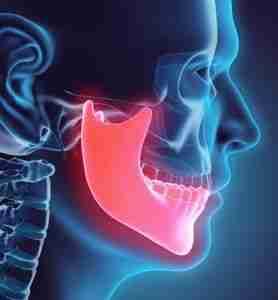 Tumor en la mandíbula