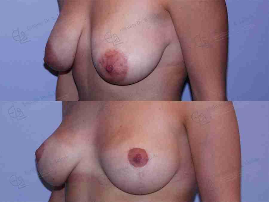 Elevación de ,mamas antes y después