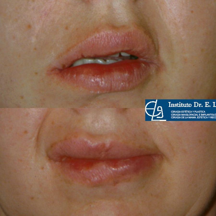 Tratamiento de parálisis facial