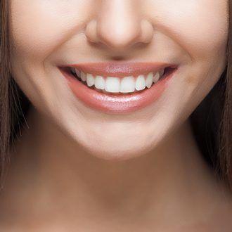 Implantes en dientes frontales