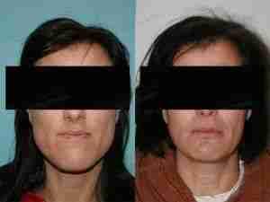 Exceso mandibular antes y después