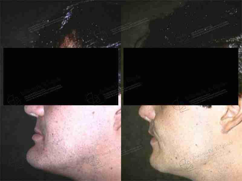 Fotos prognatismo