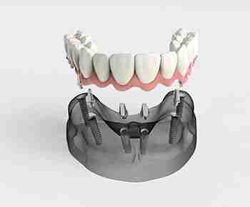 Prótesis dental fija sobre implantes dentales