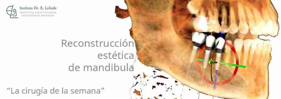 reconstruccion-de-mandibula